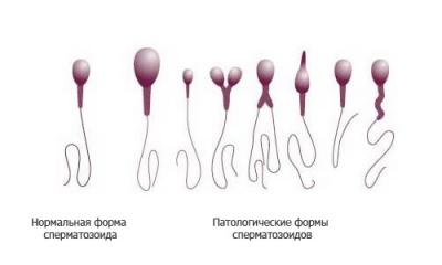 Самое большое количество сперматозоидов у мужчины